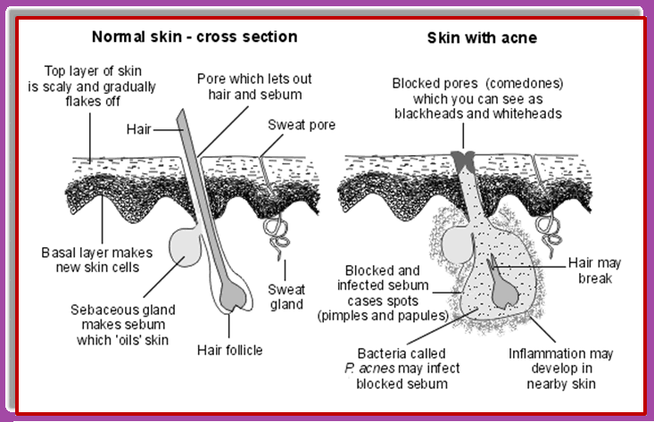 Acne-Is-Caused-By-Many-Issues-like-oil-formation-and-bacterial-effect.
