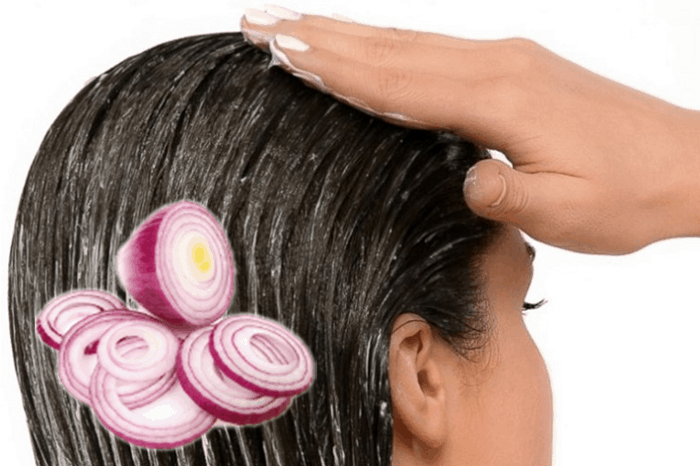 Onion Treatment For Hair
