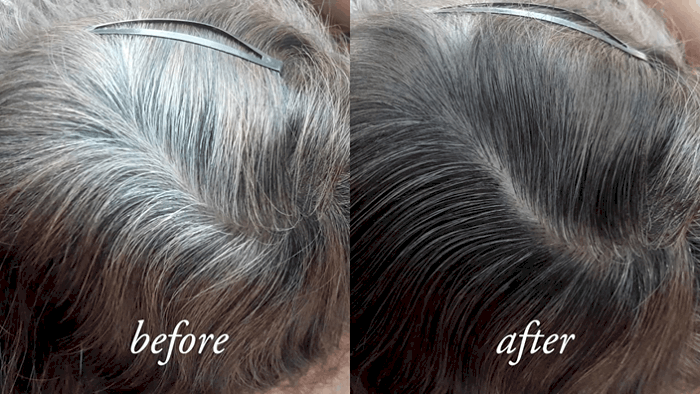 Gray Hair Reversal Results