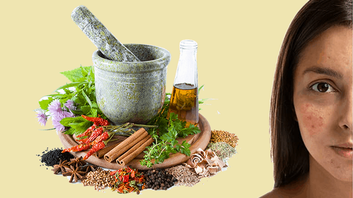 Natural Remedies For Acne And Pimple
