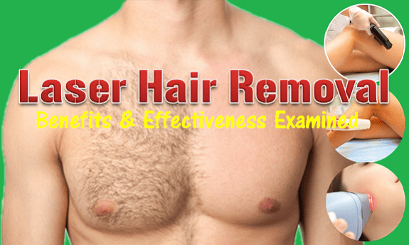 Lase Hair Removal