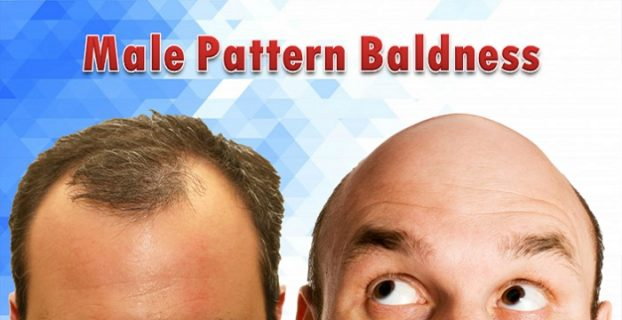 Male Pattern Baldness Facts