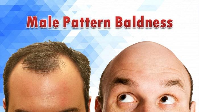 Male Pattern Baldness Facts
