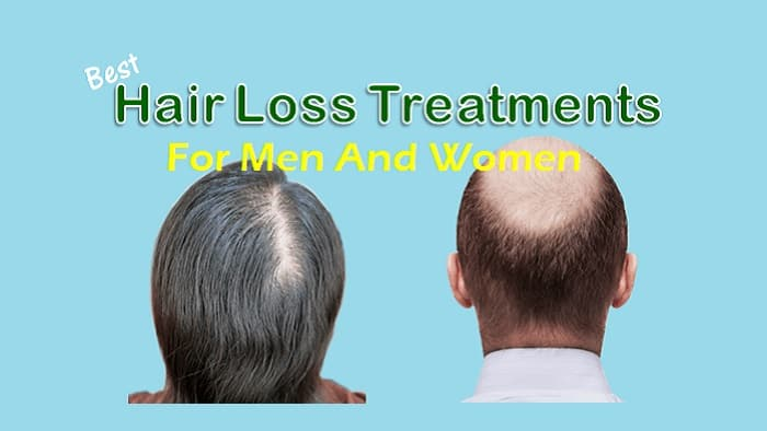 Best Hair Loss Treatment For Men And Women