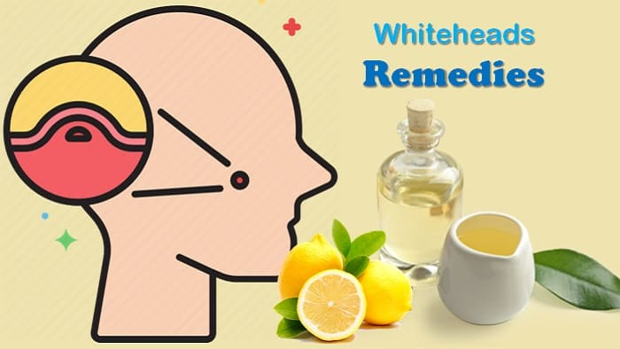 Whiteheads Remedies