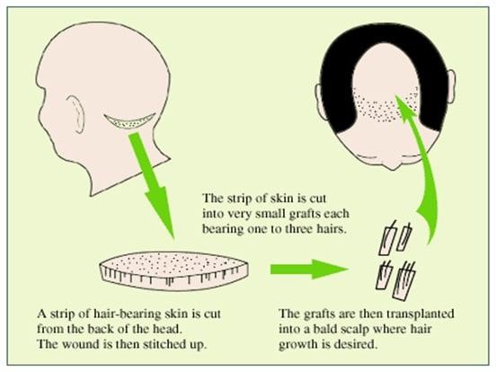Hair-Replantation-Proceedure