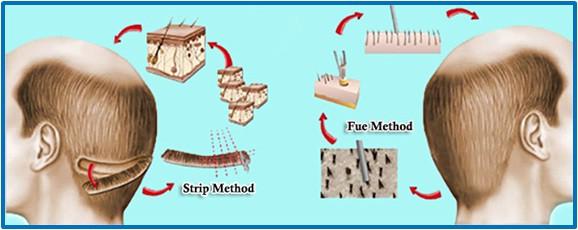 Types-Of-Hair-Transplantation