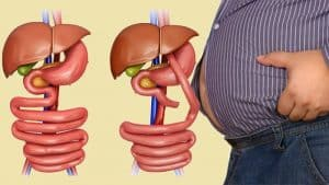 Bariatric Surgery Facts