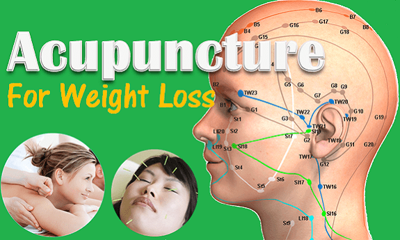 Facts On Acupuncture For Weight Loss