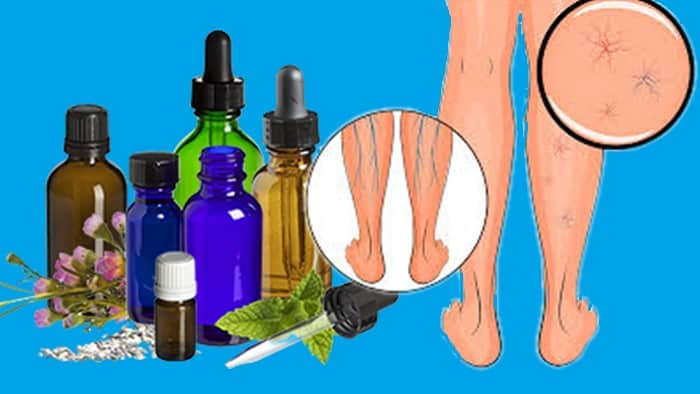 Essential Oils And Varicose Veins