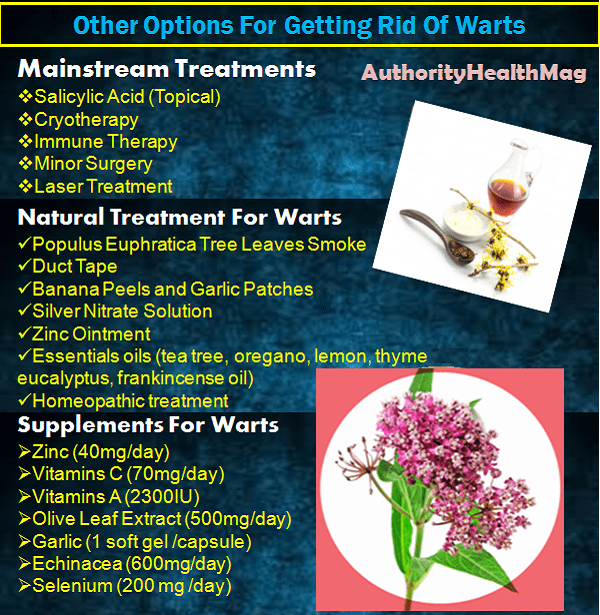 Treatments For Warts