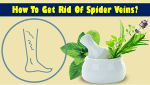 How to get rid of spider veins?