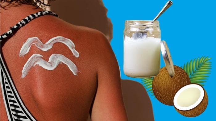 Sunburn Treatment With Coconut Oil