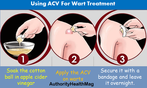 Tips For Using ACV for getting rid of warts