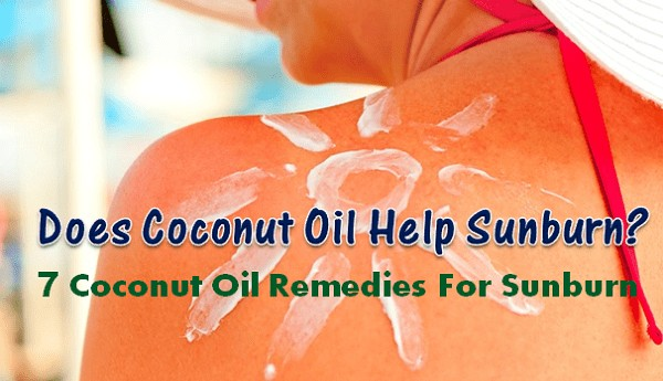 does coconut oil help sunburn