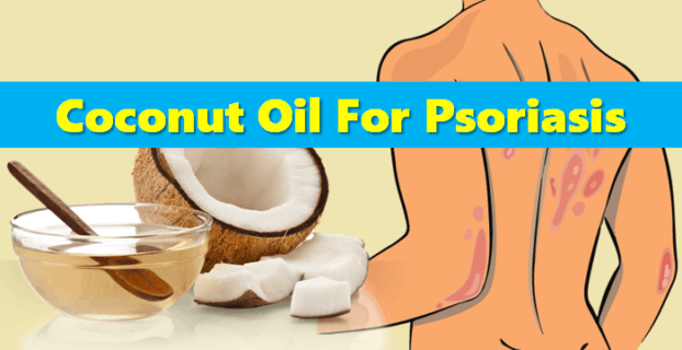 Does Coconut Oil For Psoriasis Help?