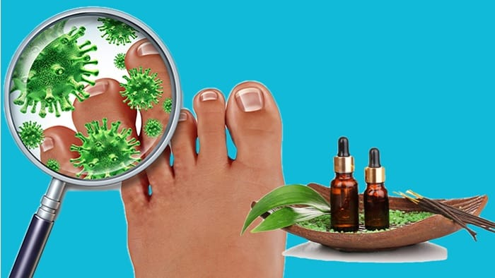 Essential Oils Treatment For Nail Fungus