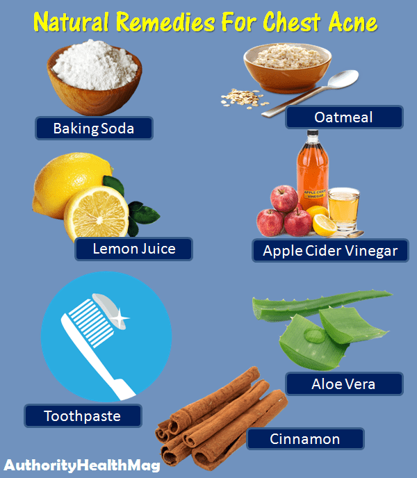 Natural Remedies For Getting Rid Of Chest Acne