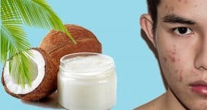 Using Coconut Oil For Acne Treatment