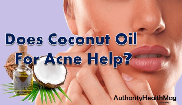 Coconut Oil For Acne Benefits