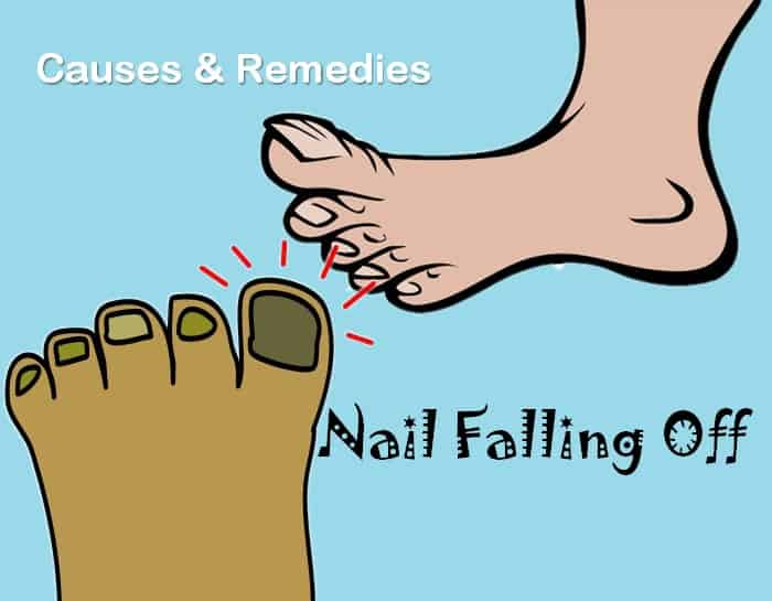Causes And Remedies For Nail Falling Off