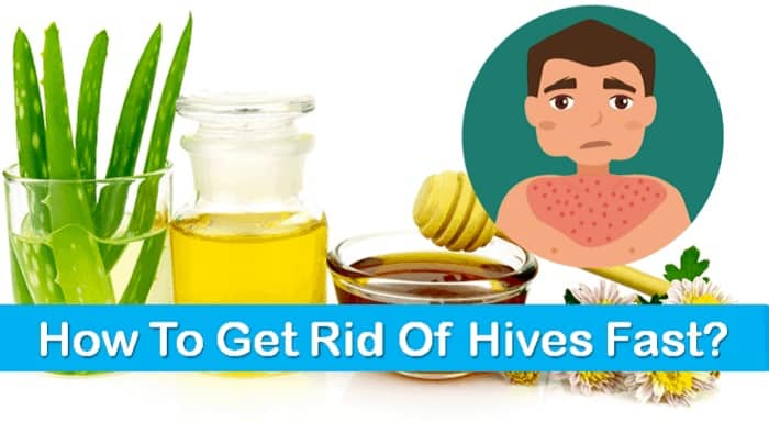 Get Rid Of Hives
