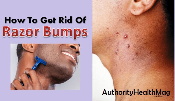 Tips For Getting Rid Of Razor Bumps