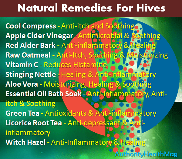 natural remedies for hives