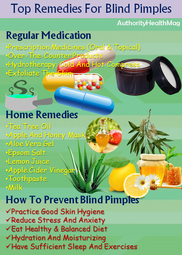 Natural Remedies For Blind Pimples