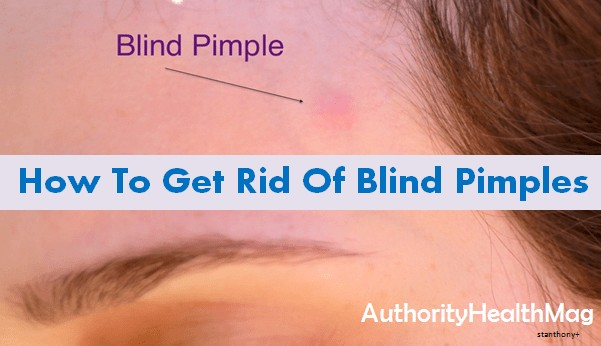 Blind Pimple Or Closed Comedones