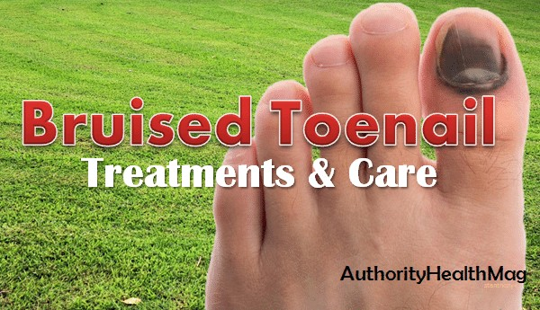 Bruised Toenail And Bruise Under Toenail - Treatments And Prevention