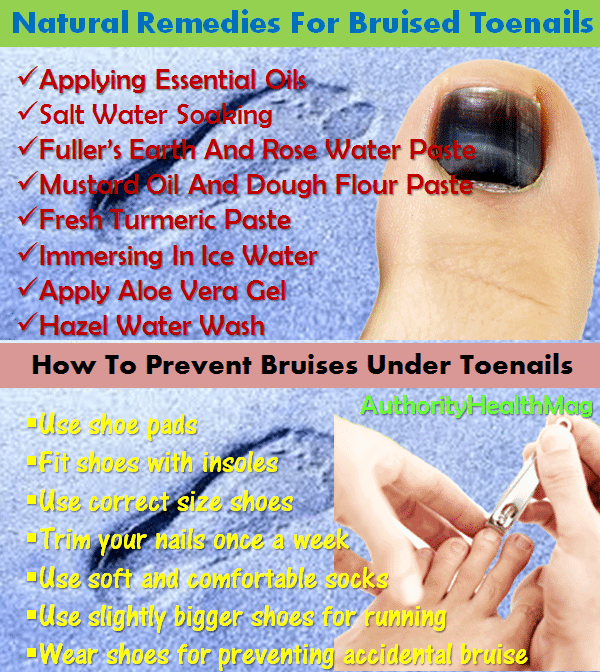 Natural Remedies For Bruised Toenails