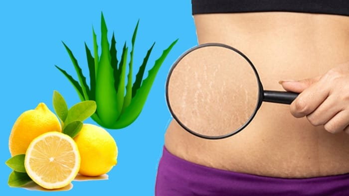 How To Get Rid Of Stretch Marks Fast | Home Remedies