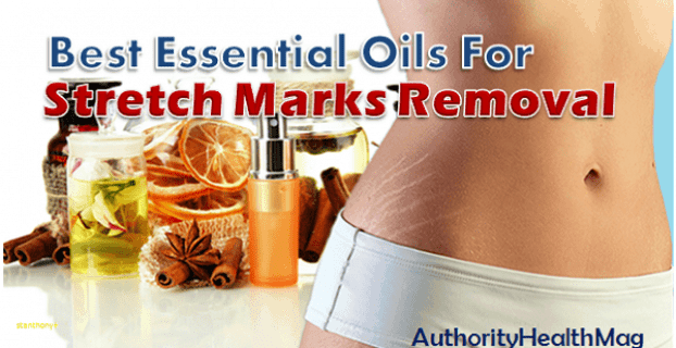 Essential Oils For Stretch Marks And Scars Removal