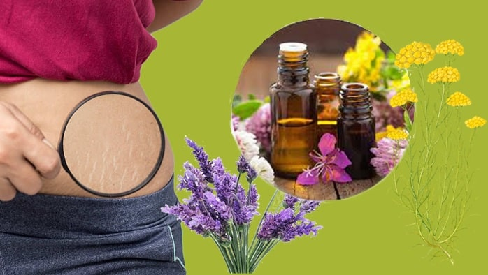 Stretch Marks Remedies With Essential Oils