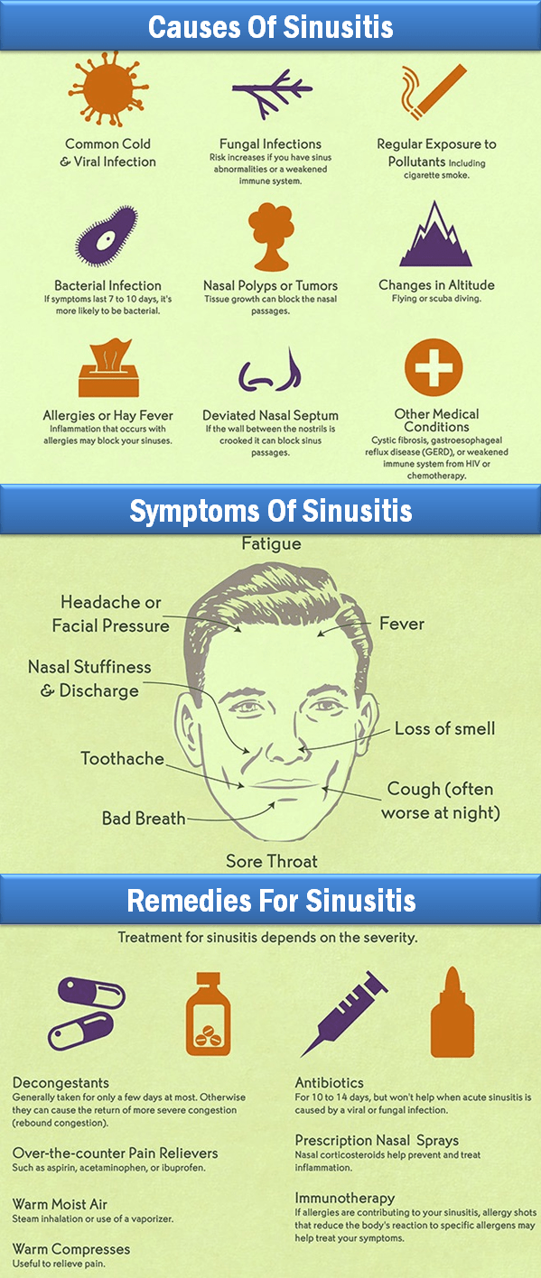 Sinus Facts