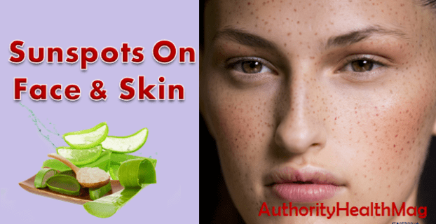 sunspots on skin and face