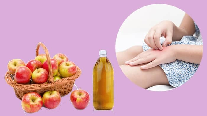 ACV Treatment For Eczema
