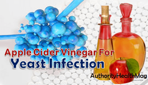 yeast infection medication