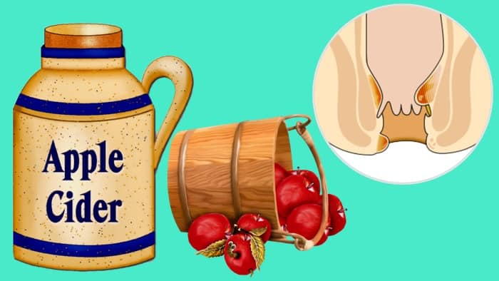 Hemorrhoids Treatment With ACV