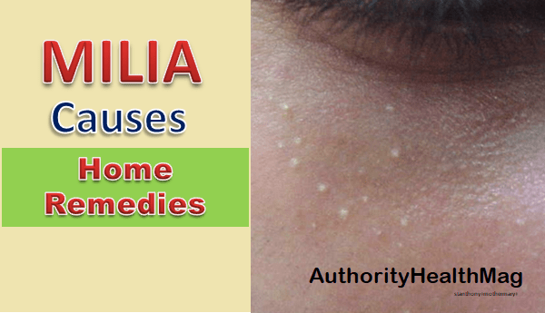 Milia Bumps And Seeds: Causes, Extraction, Cream, Home Remedies