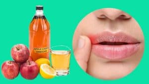 Cold Sore Treatment With Apple Vinegar