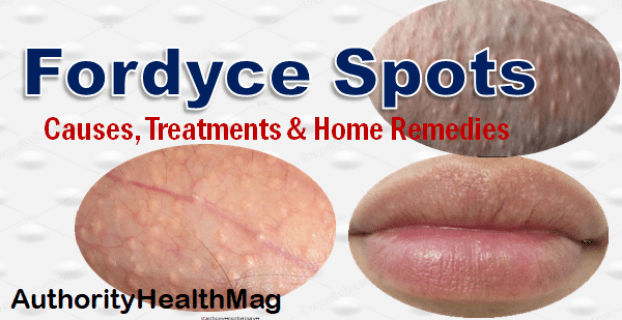 How To Get Rid Of Fordyce Spots