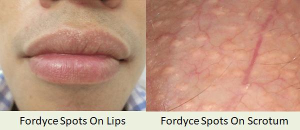 Fordyce Spots Lips