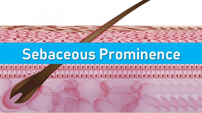 Sebaceous Prominence