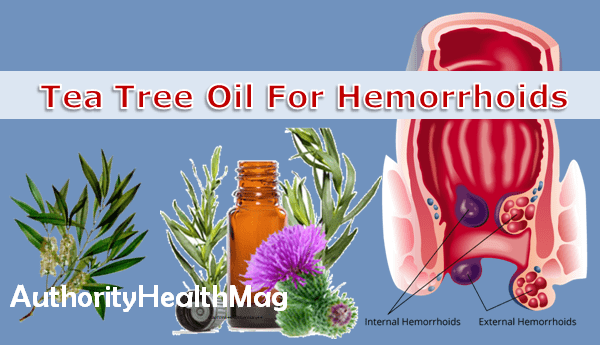 Tea Tree Oil For Hemorrhoids