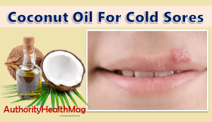 Coconut Oil For Cold Sores