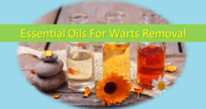 Essential Oils For Warts Removal