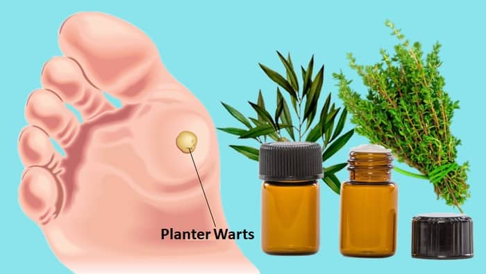 Warts Remedies With Essential Oils