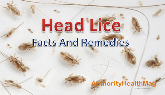 Can Black People Get Lice Head Lice Infection Facts Revealed